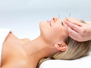 acupuncture New Jersey